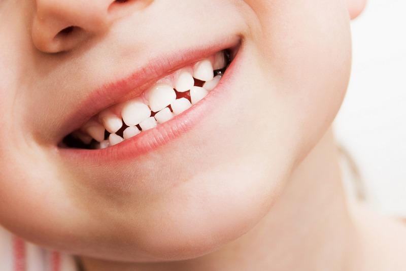 बालबालिकाको दाँतमा किरा लाग्ने कारण र बच्ने उपाय