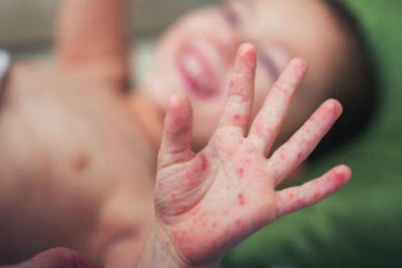प्रदेश १ मा दादुरा–रुबेला र पोलियो खोप अभियान शुरु