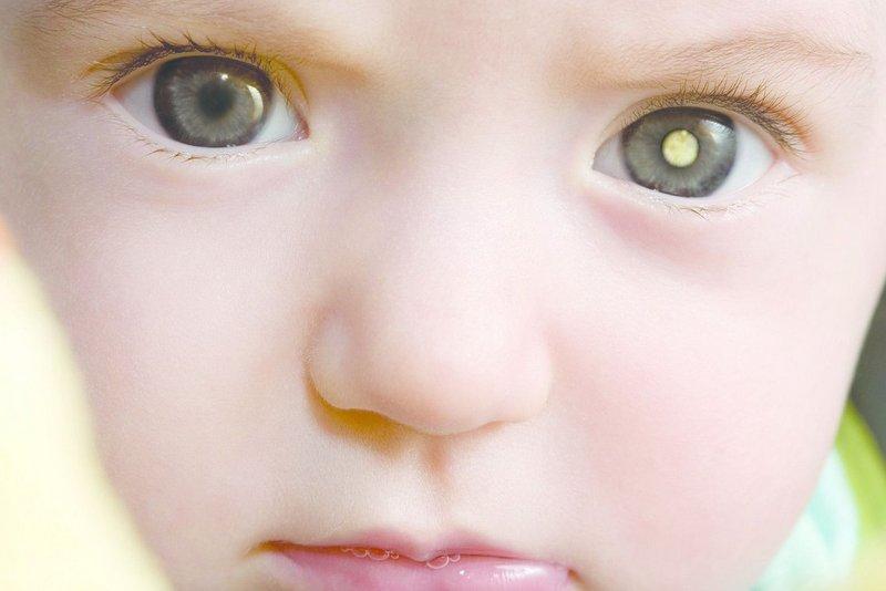 पाँच वर्षमुनिका बालबालिकामा हुने आँखाको क्यान्सर :  रेटिनोब्लास्टोमा