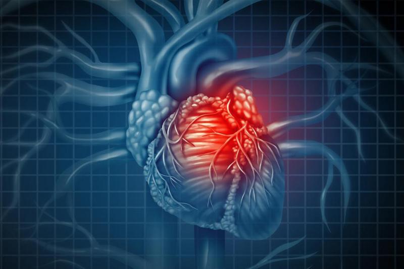 हृदयाघातका लक्षण र बच्ने उपाय