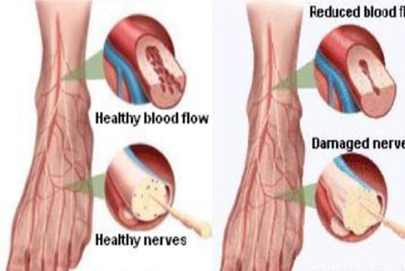 हातगोडा झमझमाउने समस्या : पेरिफेरल न्यूरोप्याथी